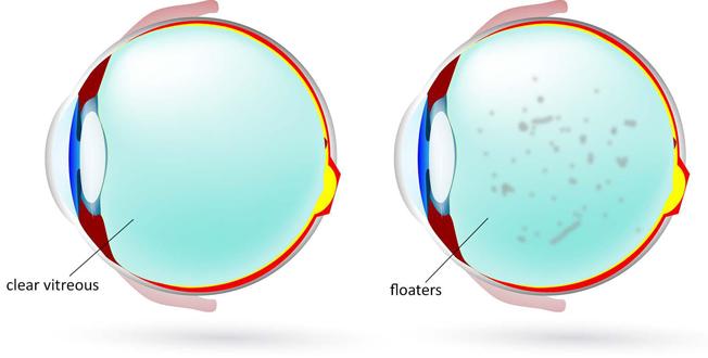 eye floater