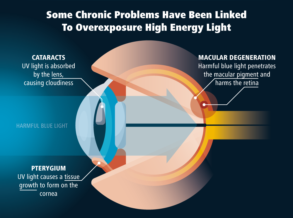 Image of chronic eye problems linked to blue light