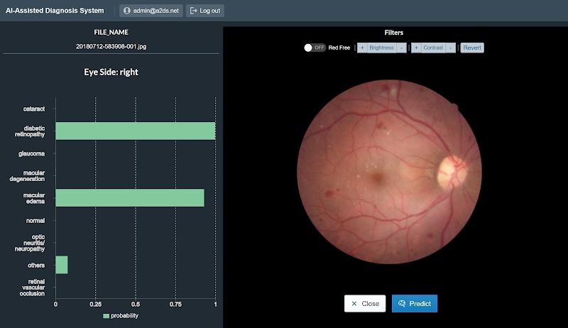 Classifyng fundus disease-Cao Thang eye hospitaI