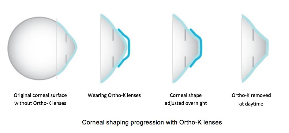 Corneal Reshaping