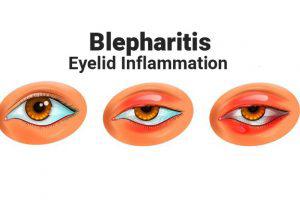 Eyelid-Inflammation-cao-thang-eye-hospital