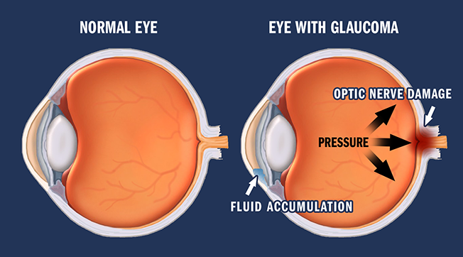 Glaucoma-Cao-Thang-eye-hospital