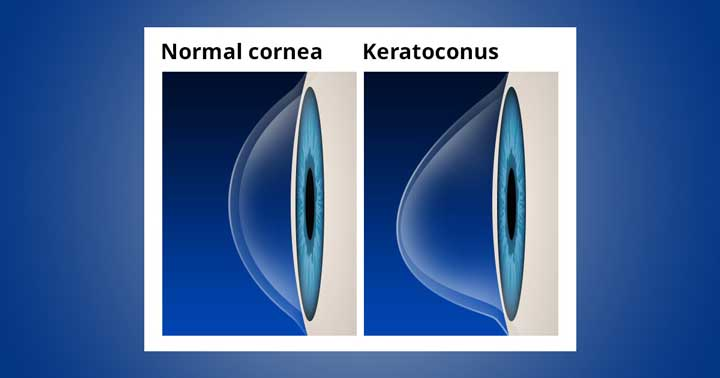 Keratoconus-condition