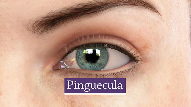 Pinguecula-Cao thang eye hospital
