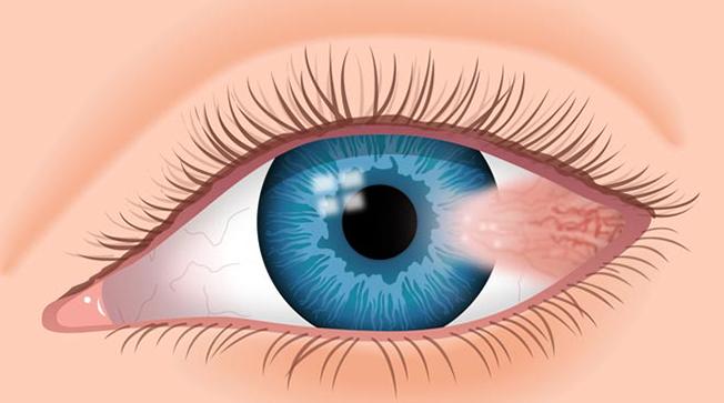 Pterygium-Cao-Thang-eye-hospital