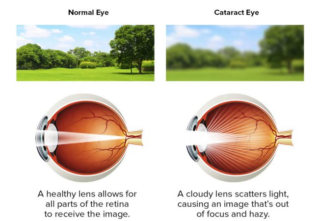 Cataract  and normal eye