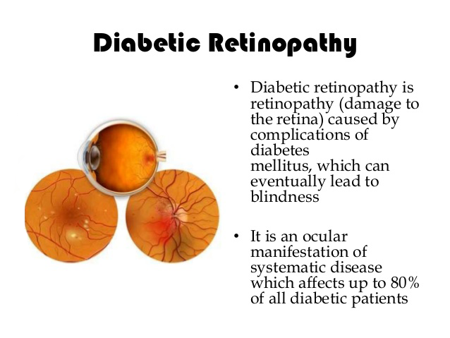 diabetic-retinopathy-cao-thang-eye-hospital01