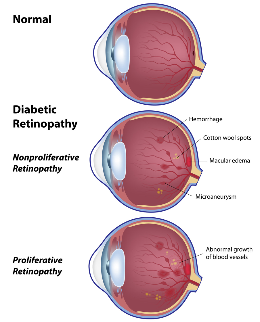 diabetic-retinopathy-stages-cao-thang-eye-hospital