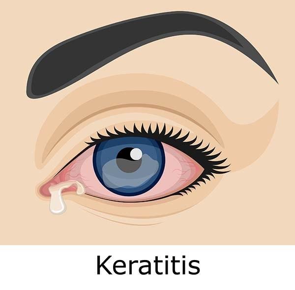 keratitis symptoms cao thang eye hospital