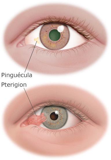 pterygium&pinguecula