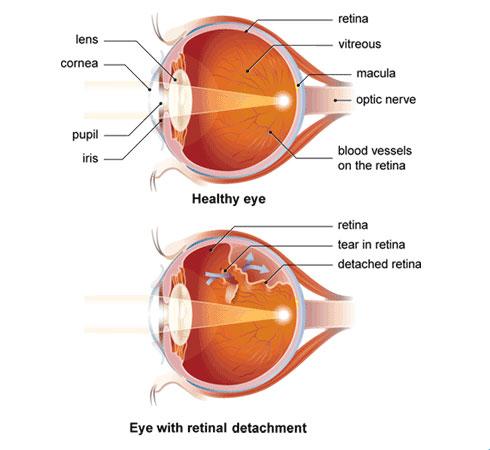 retinal_detachment-cao-thang-eye-hospital