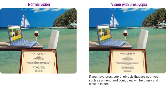 signs-of-presbyopia