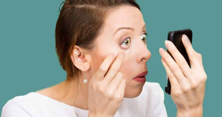 swollen-eyelids